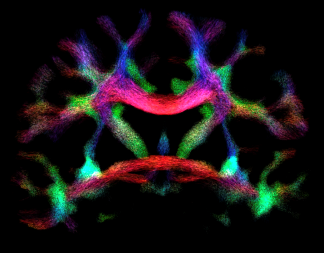 Image captured of brain neurons directionally firing.