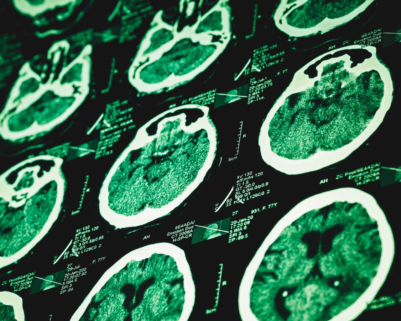Imaging Study Confirms Differences In Adhd Brains The University Of Sydney