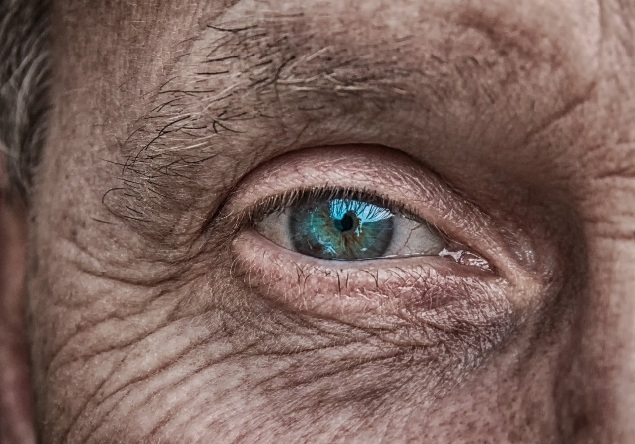 A tiny microchip implant is placed on top of the eye and is connected to a set of electrodes that interface with surviving nerve tissue