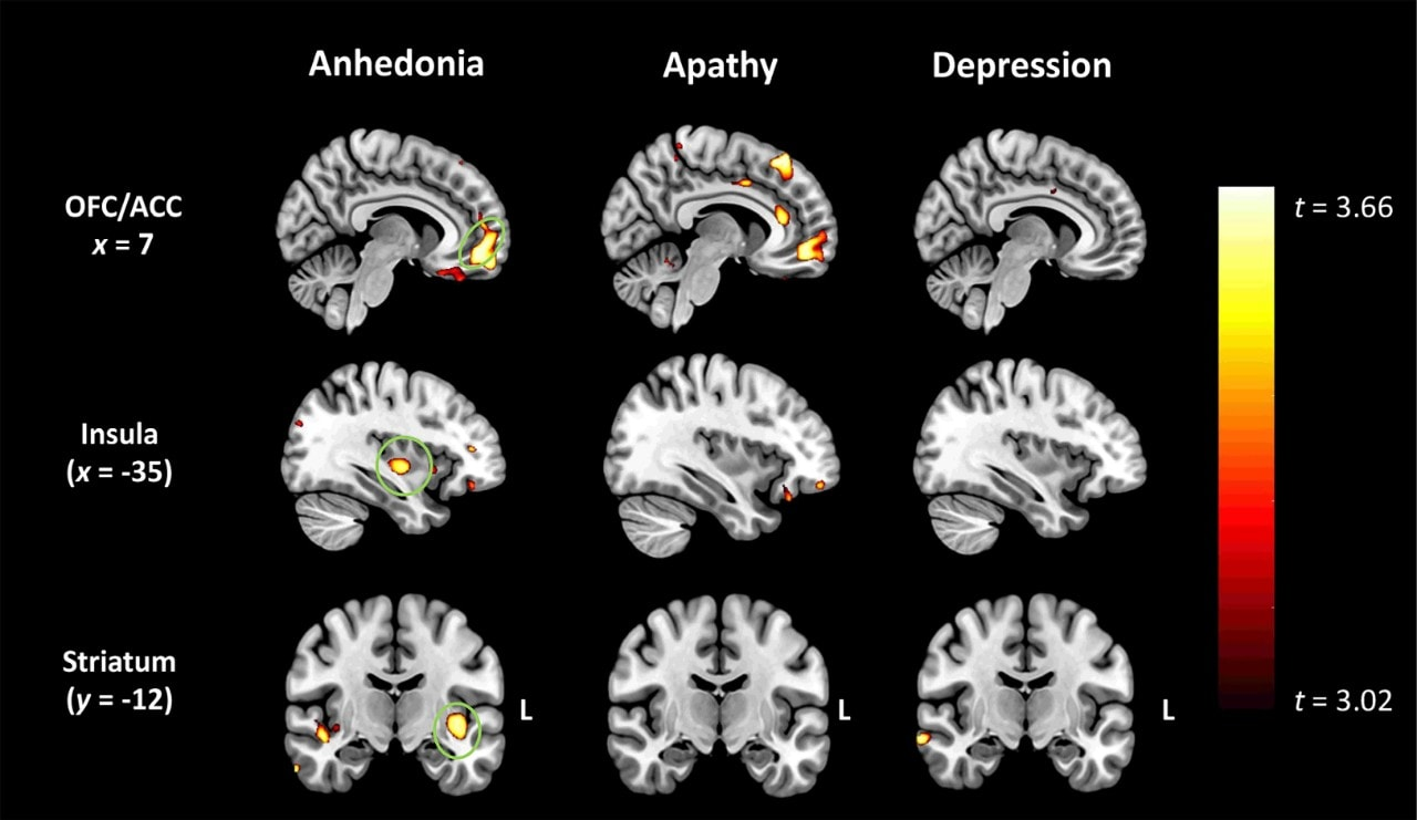 Neuroimaging findings show grey matter intensity decreases related to anhedonia, apathy and depression. Anhedonia in FTD was related to degeneration of the regions circled in green, which are 'hedonic hotspots' (related to reward-seeking) in the brain. Credit: University of Sydney.