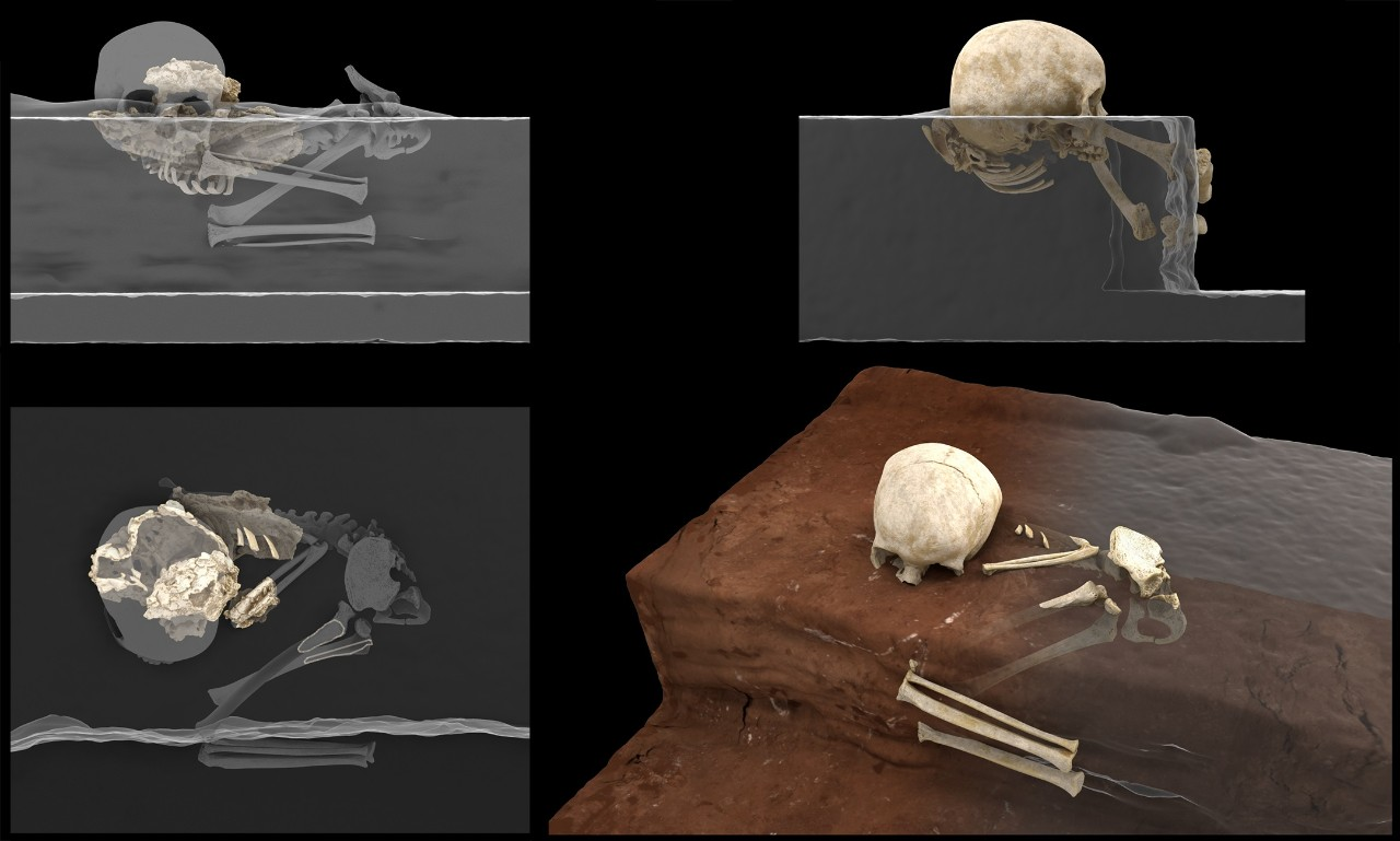 xray images of the skeleton