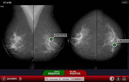 Figure 1. Screenshot of the BREAST assessment system. In this case the user diagnosed cancers in a normal case. In practice this may result in an unnecessary and expensive biopsy procedure and significant stress to the patient.