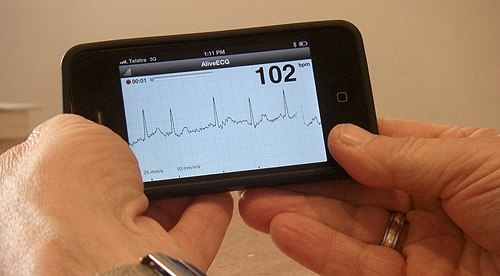 The iECG allows doctors to screen patients for atrial fibrillation, the most common heart rhythm problem, in minutes and treat them early, says Professor Ben Freedman.
