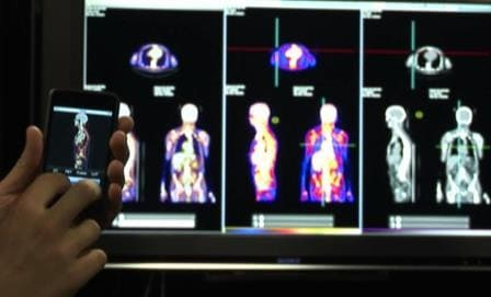 Biomedical imaging is transforming modern medicine